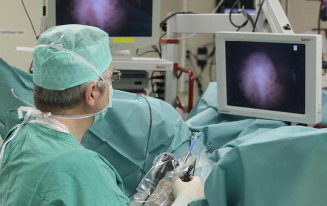 Методы лечения рака мочевого пузыря в Германии