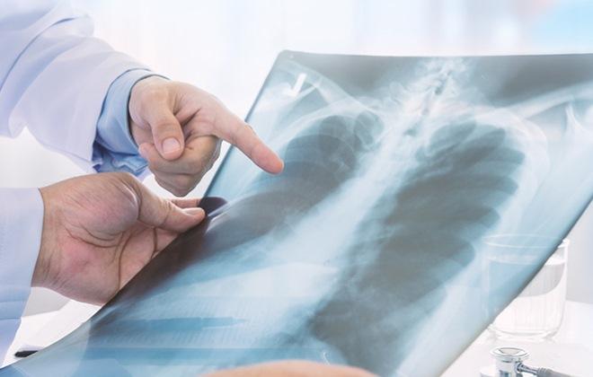 Преимущества лечения рака легких в Израиле